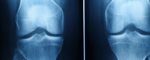 Desgaste de Rodilla – Cómo Saber Si Necesitas Cirugía